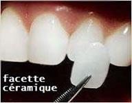 esthetique-dentaire-poitiers-montamise-2