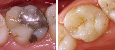 esthetique-dentaire-poitiers-montamise-3