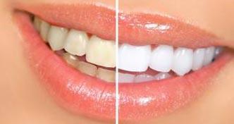 esthetique-dentaire-poitiers-montamise-4