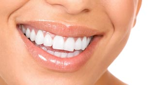 esthetique-dentaire-poitiers-montamise