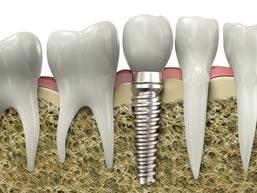 implantologie-implant-poitiers-montamise-1