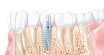 implantologie-implant-poitiers-montamise