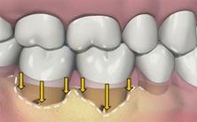 parodontologie-poitiers-montamise-1
