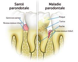 parodontologie-poitiers-montamise-2